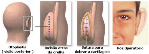 otoplastiacirurgiaplastica
