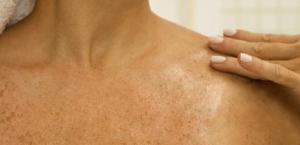 manchas, clareadores, facial (1)