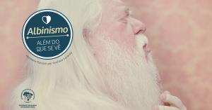 SBD_PostFB_Albinismo_06 (1)